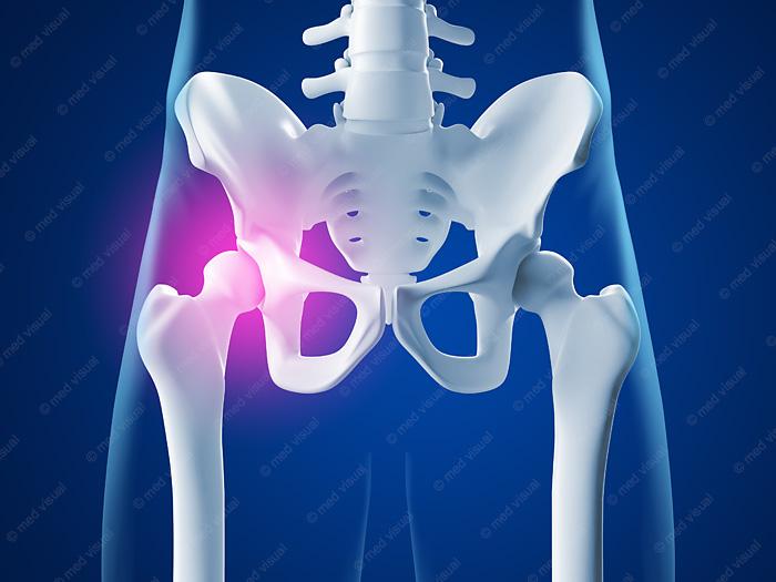 Hüftgelenkschmerzen medizinische 3D-Illustration