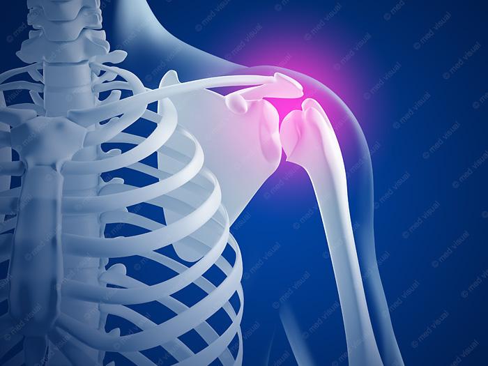 Schulterschmerzen: anatomische 3D-Illustrationen