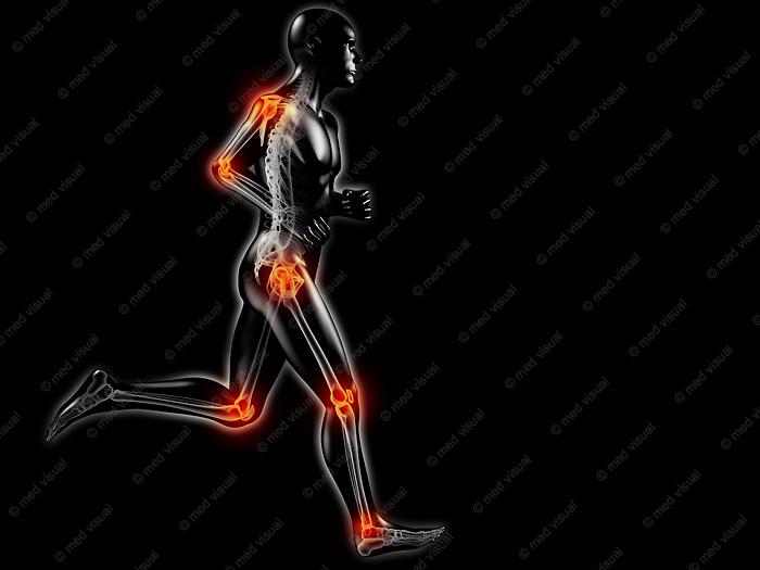 Medizinische 3D-Illustration: Bewegungsschmerzen