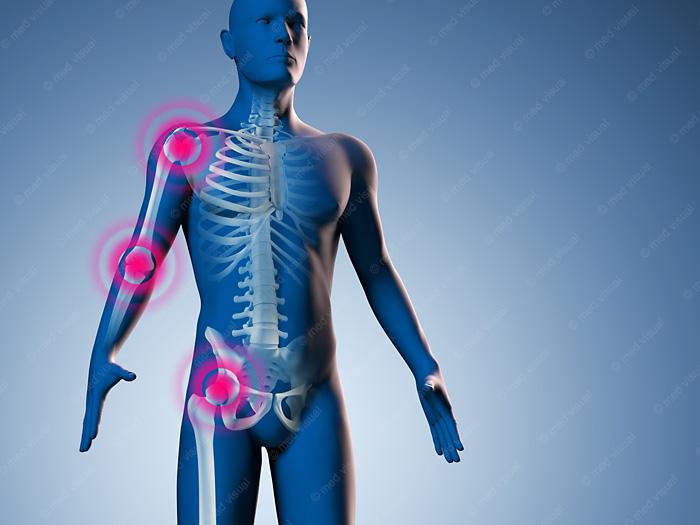 Medizinische 3D-Illustration Gelenkschmerzen