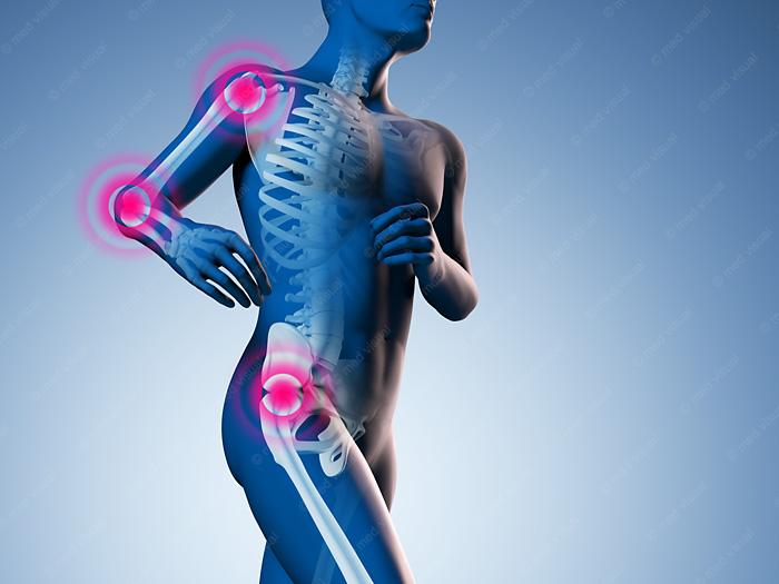 Bewegungsschmerzen anatomische 3D-Illustration