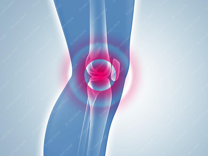 Kniegelenkentzündung: medizinische 3D-Illustration