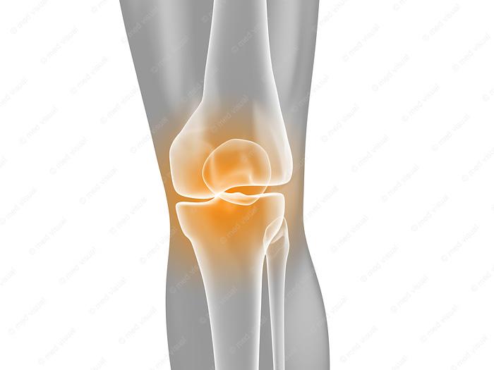 medizinische 3D Grafik Knieschmerzen Anatomie