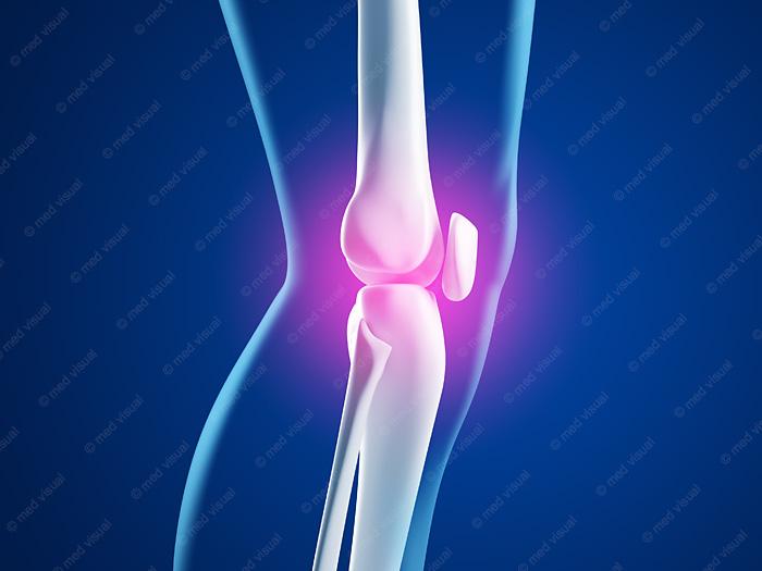 Kniegelenkschmerzen medizinische 3D-Grafik
