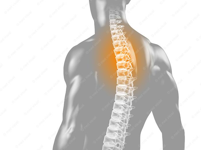Rückenschmerzen medizinische 3D Visualisierung