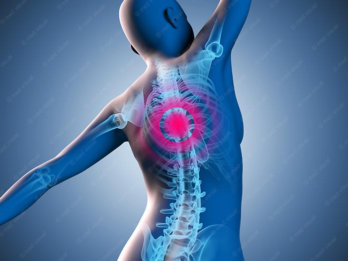 Medizinische 3D Grafik Rückenschmerzen