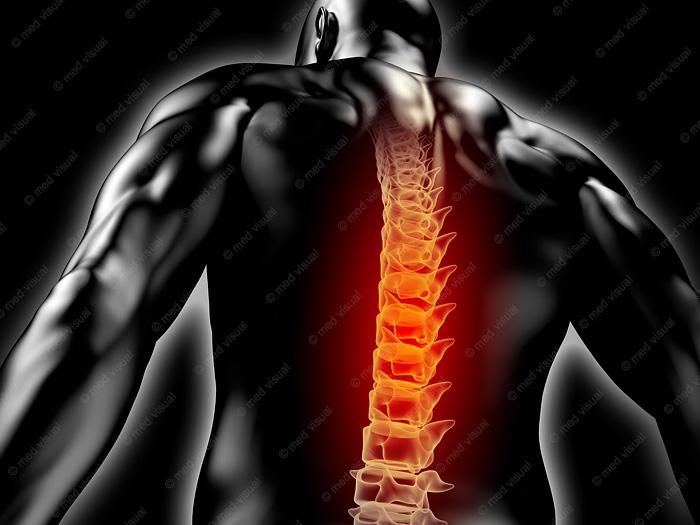 3D-Illustration / 3D-Grafik: Rückenschmerzen