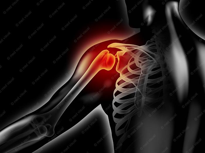 Medizinische 3D-Visualisierung: Schulterschmerzen