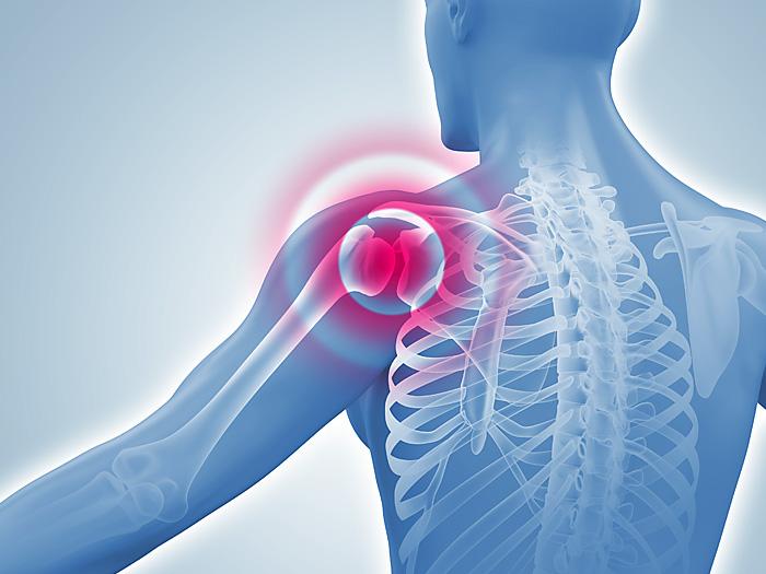 Schultergelenk-Entzündung: medizinische 3D-Illustration