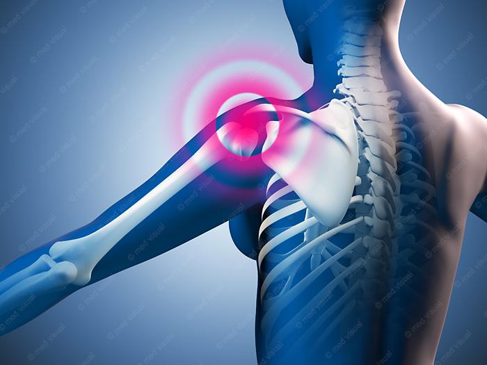 Anatomische 3D-Illustration Schulterschmerzen