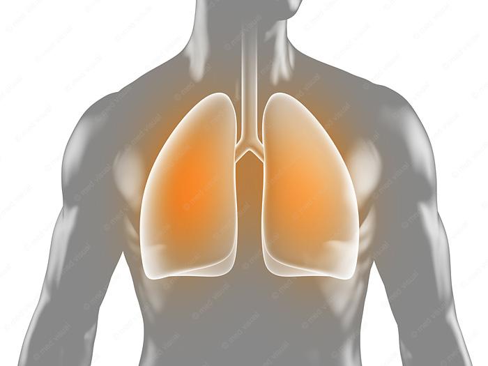 Lungenentzündung medizinische 3D-Grafik