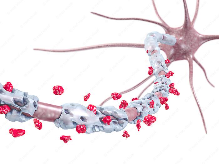 Entzündung der Myelinscheide, Nervenfaser einer Nervenzelle: medizinische 3D-Illustrationen