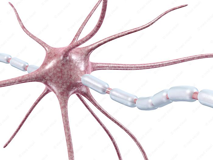 Nervenfaser einer Nervenzelle und Entzündung der Myelinscheide: 3D-Illustrationen