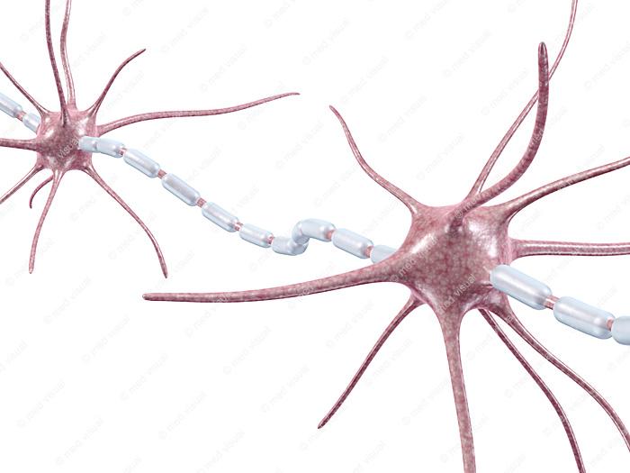 3D-Illustrationen: Nervenfaser einer Nervenzelle und Entzündung der Myelinscheide