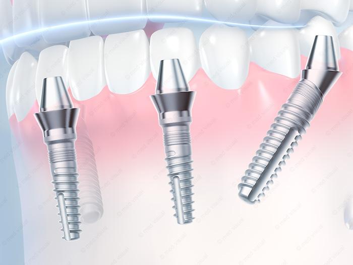 Zahnimplantate 3D-Grafik