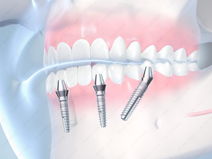 Zahnimplantate 3D-Illustration