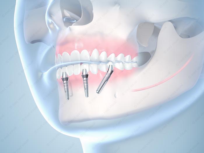 Zahnimplantate – medizinische Illustrationen