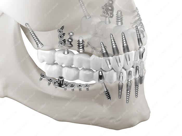 Zahnimplantate 3D-Visualisierung